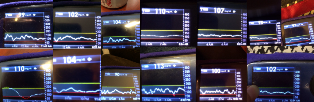 Dana BGs with OpenAPS