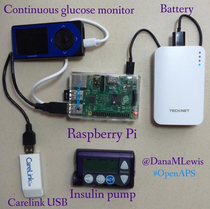 "How I designed a ""DIY"" closed loop artificial pancreas"