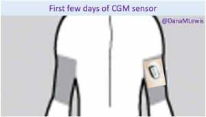 Dana Lewis_first day CGM sensor illustration