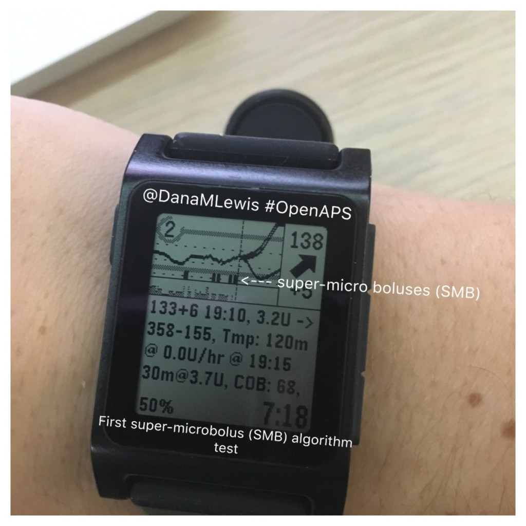 First oref1 SMB OpenAPS test as seen on @DanaMLewis pebble watch