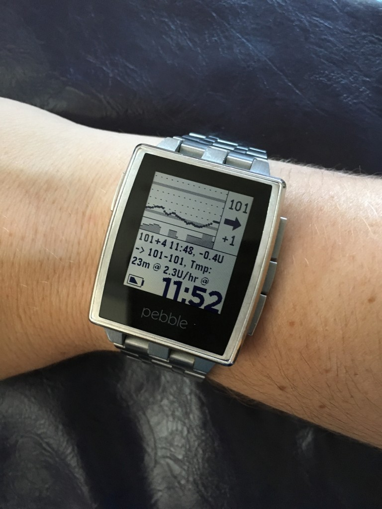 OpenAPS logs on Pebble watch @DanaMLewis example